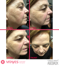 INSTANT AGEBACK - LIFTING CREAM: wrinkles, bags, dark circles, scars and enlarged pores (26x single dose of 0,3ml).