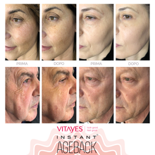INSTANT AGEBACK - lifting cream: wrinkles, bags, dark circles, scars and enlarged pores (26x single-dose).