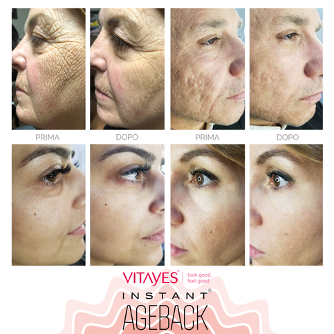 INSTANT AGEBACK - LIFTING CREAM: wrinkles, bags, dark circles, scars and enlarged pores (15ml format).