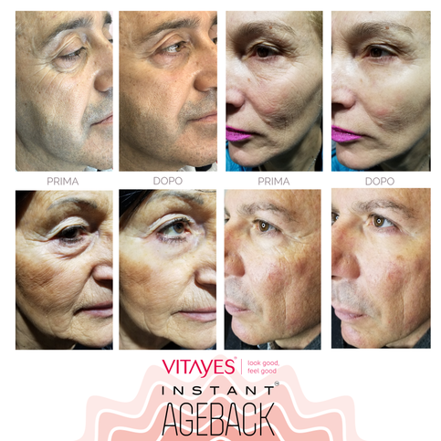 INSTANT AGEBACK - lifting cream: wrinkles, bags, dark circles, scars and large pores.