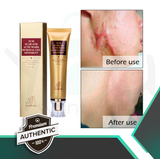 Scar Removal Burn Scars Bruises Surgical Pimple scar Insect Bite Marks