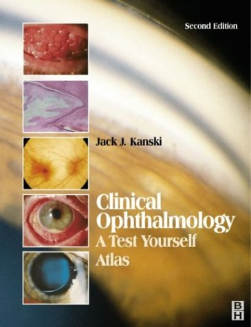 Clinical Ophthalmology: A Test Yourself Atlas, 2e