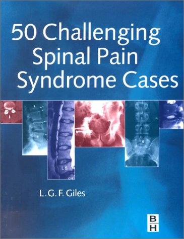 50 Challenging Spinal Pain Syndrome Cases: A problem solving approach, 1e