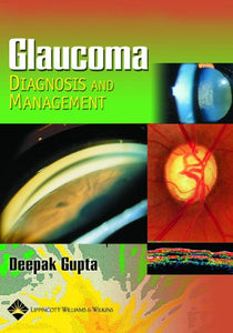 Glaucoma Diagnosis and Management