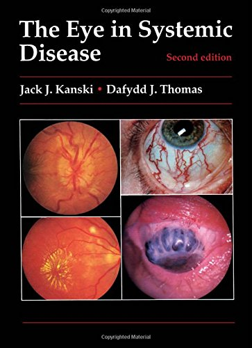 The Eye in Systemic Disease (Colour Manuals in Ophthalmology)