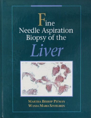 Fine Needle Aspiration Biopsy of the Liver, A Color Atlas