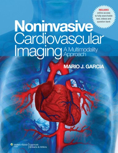NonInvasive Cardiovascular Imaging: A Multimodality Approach