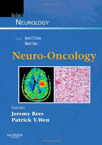 Neuro-Oncology: Blue Books of Neurology Series, 1e