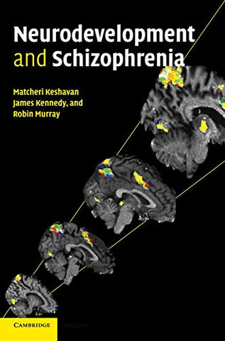 Neurodevelopment and Schizophrenia