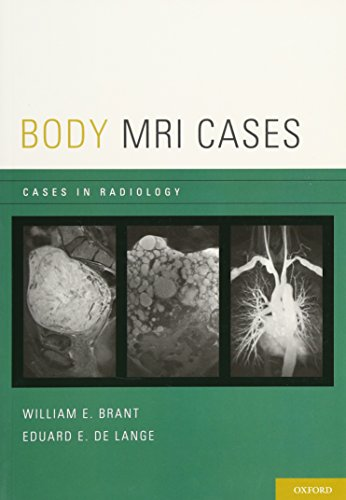 Body Mri Cases (Cases In Radiology)