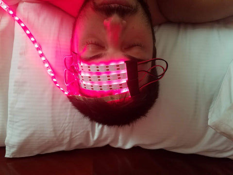 transcranial photobiomodulation brain red light therapy