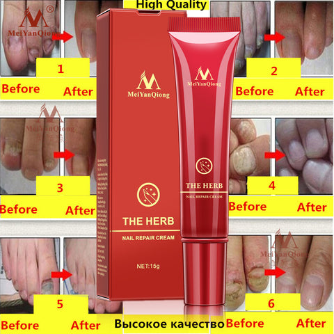 Anti Fungal Nail Treatment Cream