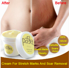 Stretch Marks And Scar Removal Cream