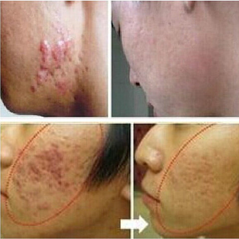 Ginseng Extract Scar Remover