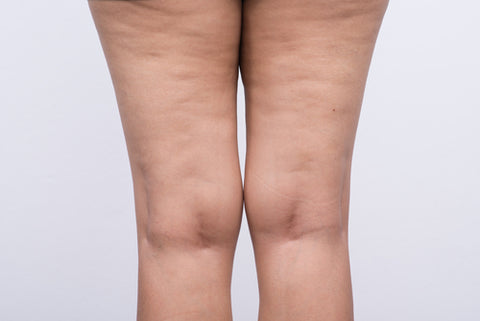 Reduce Cellulite At Home