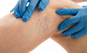 Sclerotherapy - Vein Injections