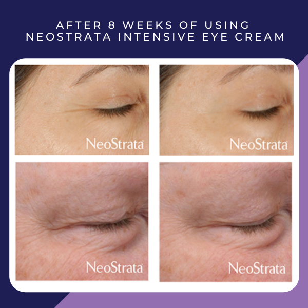 Before and after of neostrata intensive eye repair cream