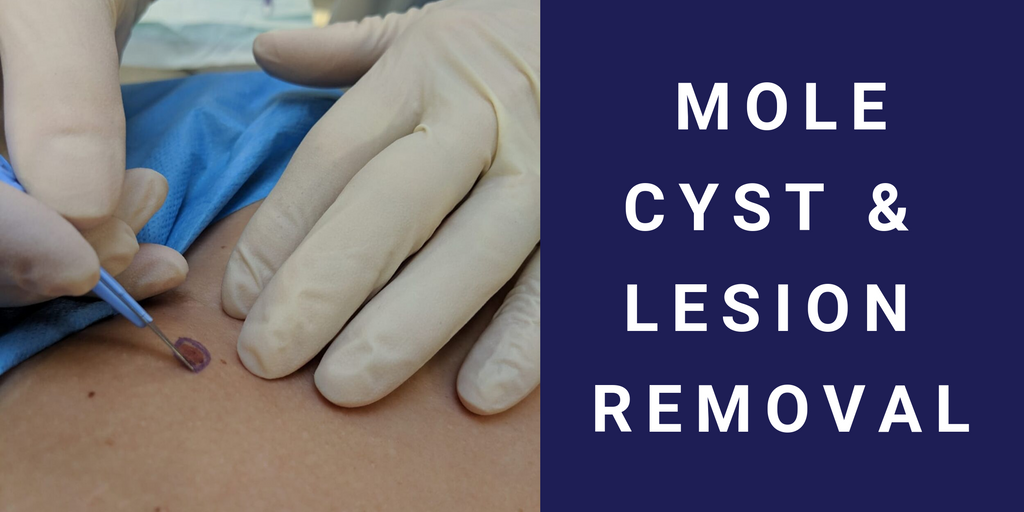 Mole Cyst And Lesion