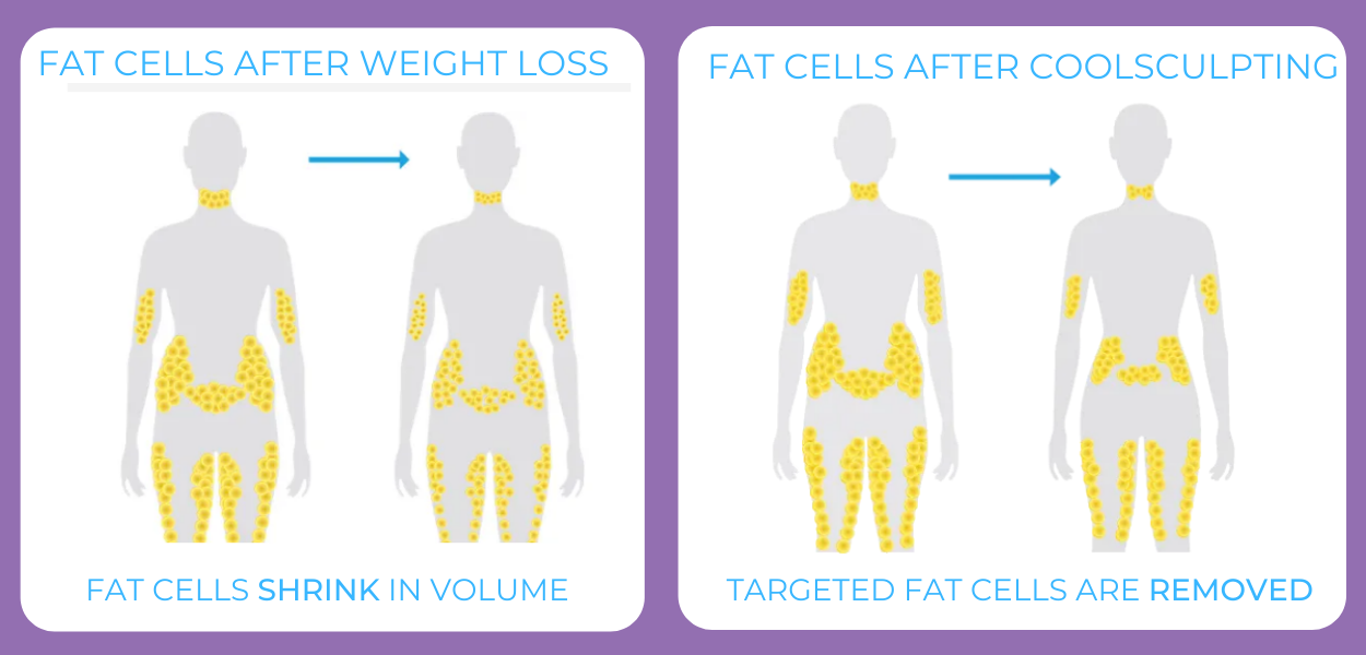 Fat Cells Diagram