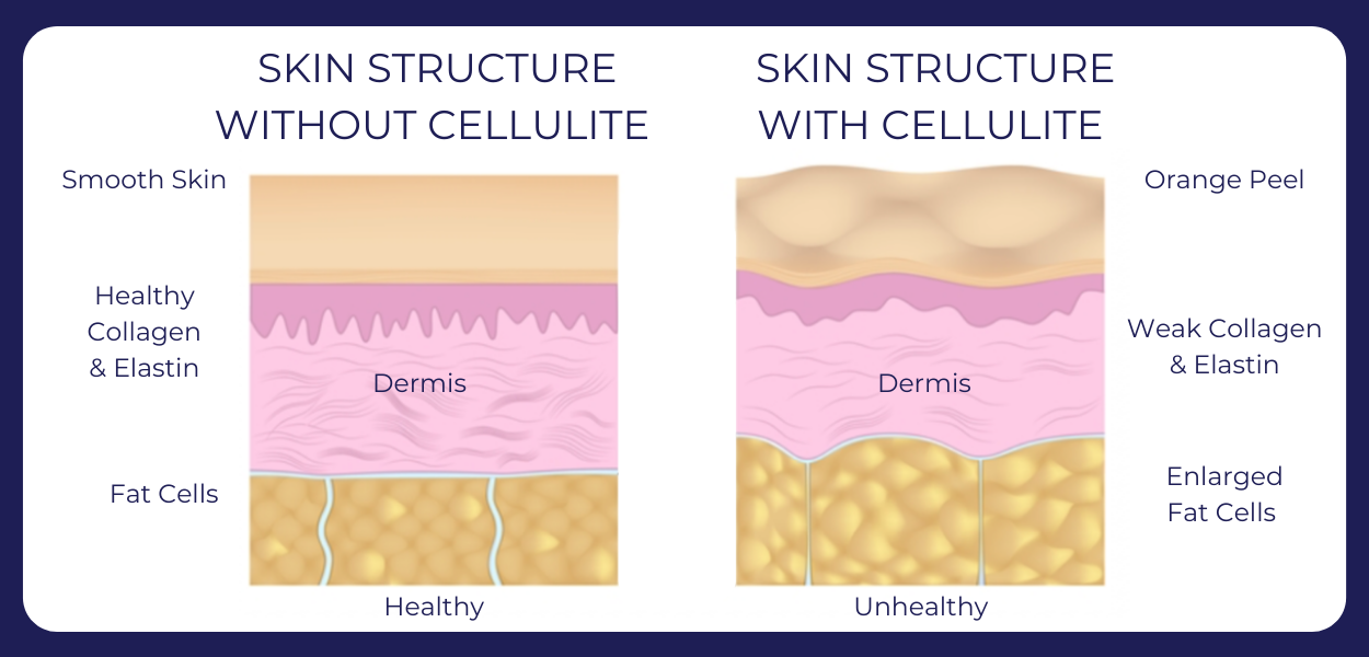 Cellulite Diagram