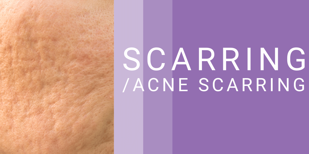 Scarring and Acne Scarring