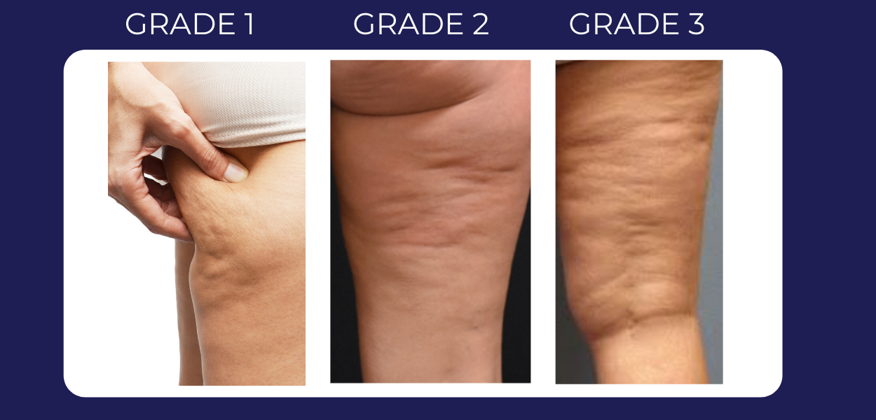 Grades of cellulite diagram
