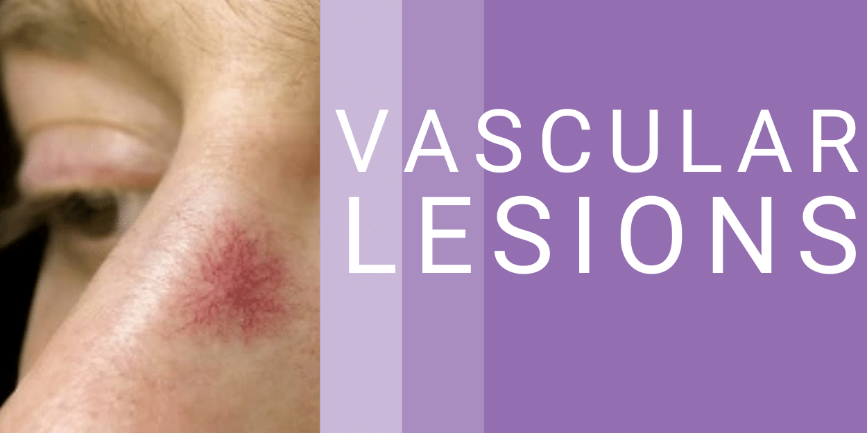 image of a vascular lesion on the side of a mans nose