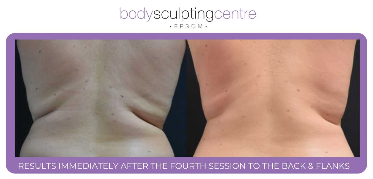 After Exilis Ultra Treatment