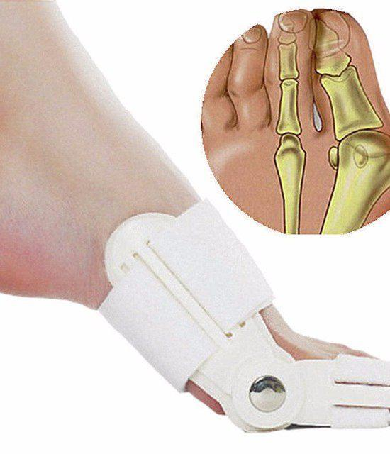Bunion Corrector - Surgery Free Treatment - Gem Owl