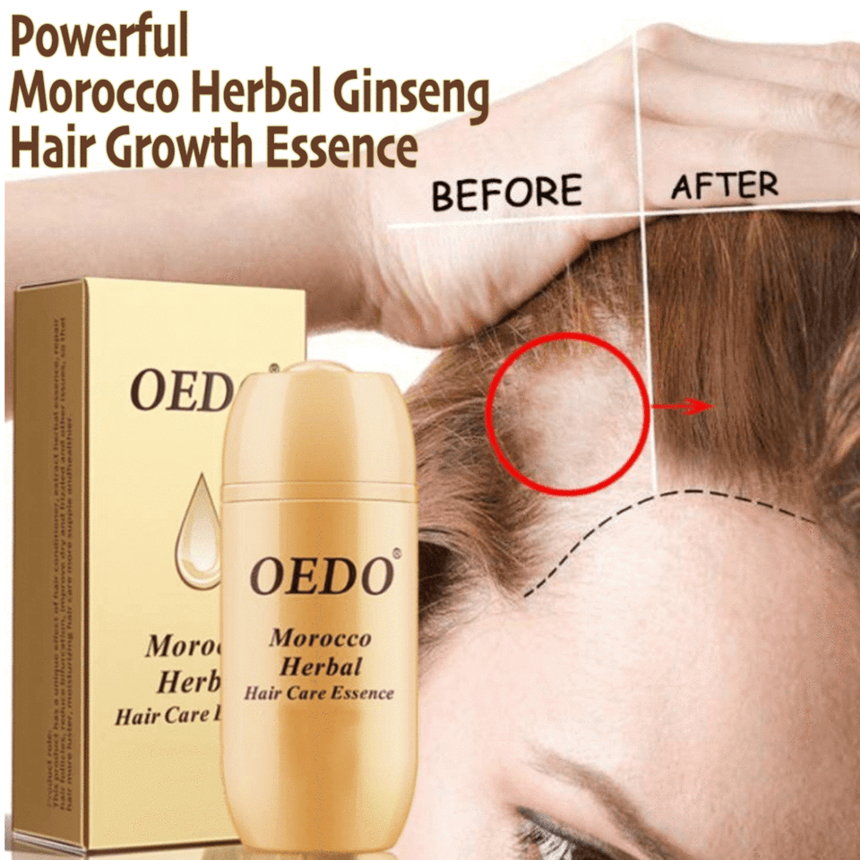 Powerful Morocco Herbal Ginseng Hair Growth Essence - Gem Owl