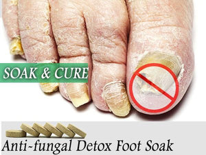 Detoxifying Antifungal Foot Spa - Gem Owl