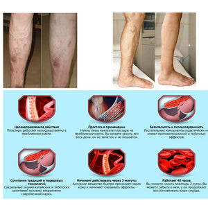 Herbal Varicose Vein Treatment Patches - Gem Owl
