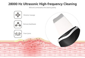 Ultrasonic Ion Skin Scrubber - Gem Owl