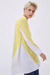 Poplin Detail Striped Tunic