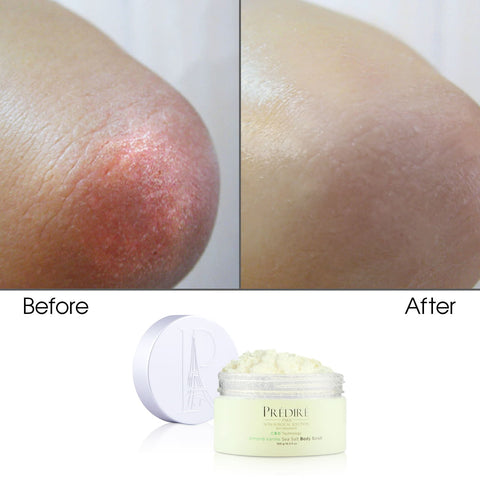 before and after using Coconut Sea Salt Body Scrub Powered by Bio Organica & Apple with Grape Stem Cell Technology and CBD