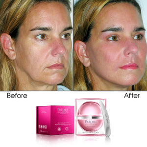 Skin Collagen Cell Renewal Collection Powered By Retinol with Skincare Infuser (Bundle)