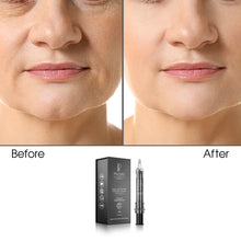 Skin Tightening Anti-Aging Collection (Bundle)