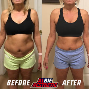 8 Week Custom Transformation Program
