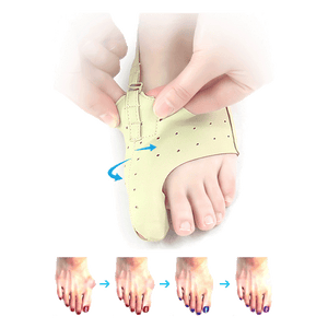 Day Time Bunion Corrector (Can Wear With Socks & Shoes, Fits Both Feet) - Astral Cart