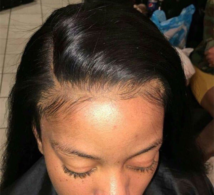 Custom Hairline