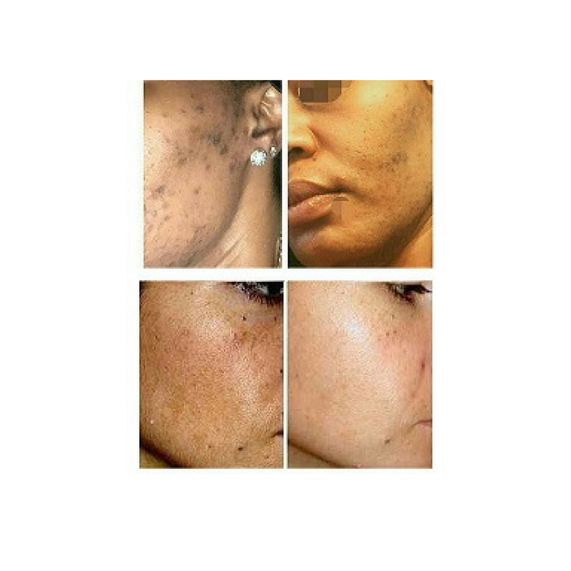 Hyperpigmentation Relay