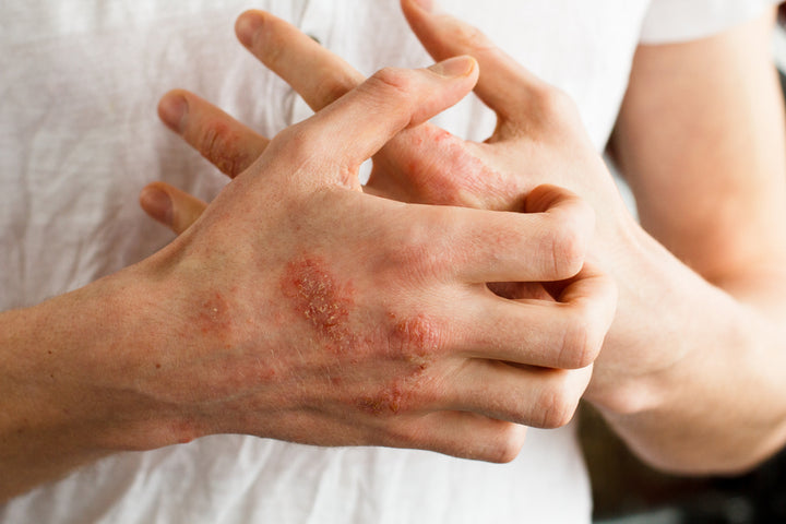 Customer Experience: Barrier Skin Cream Helps Man with Severe Eczema