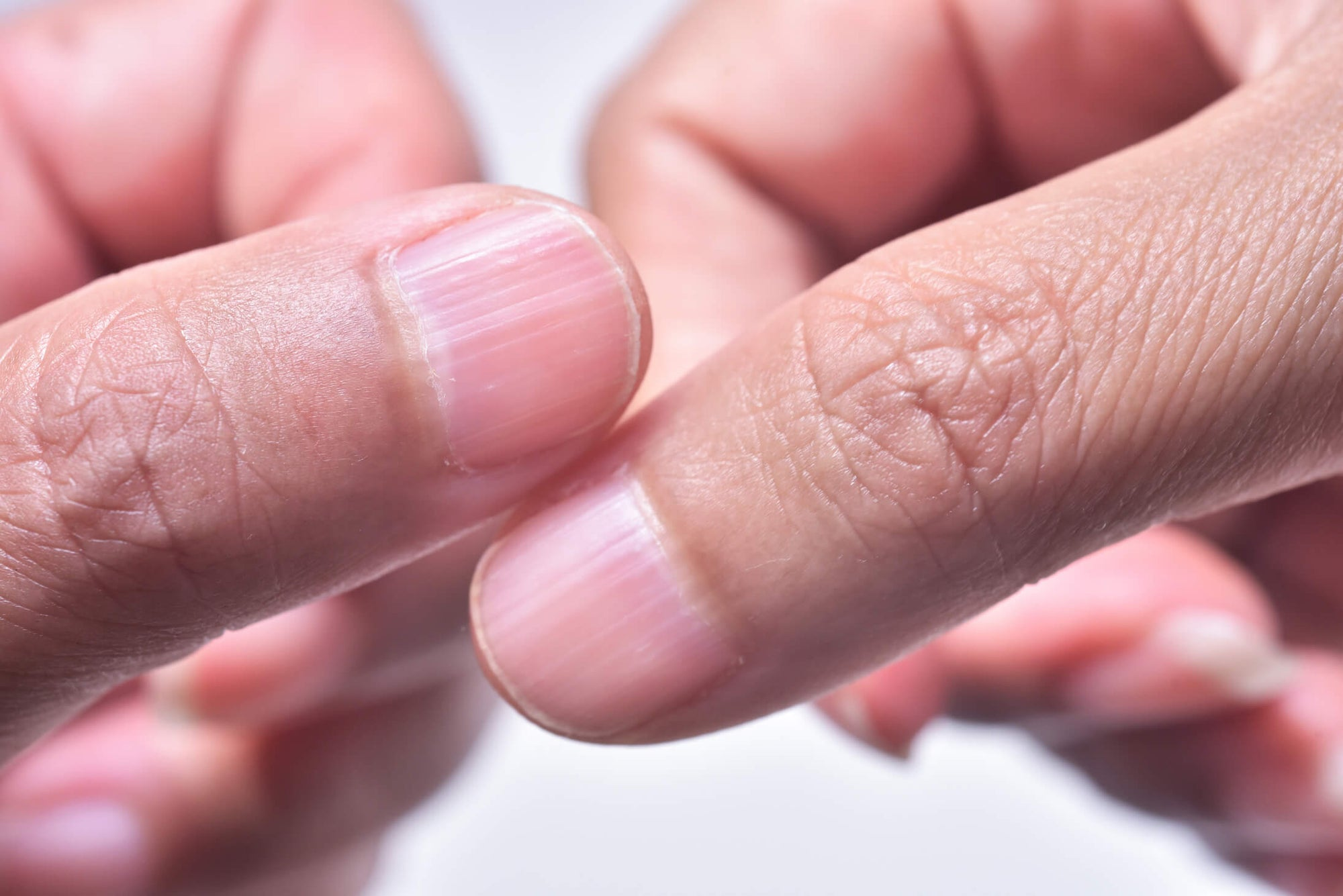 Ridges in fingernails