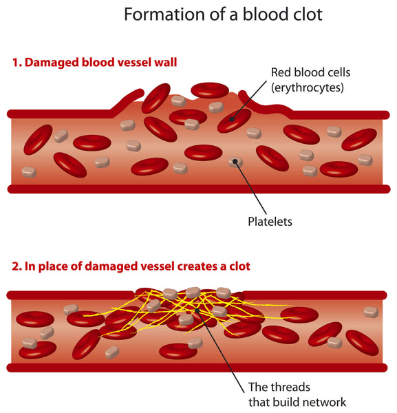 Infographic explaining how a blood clot forms