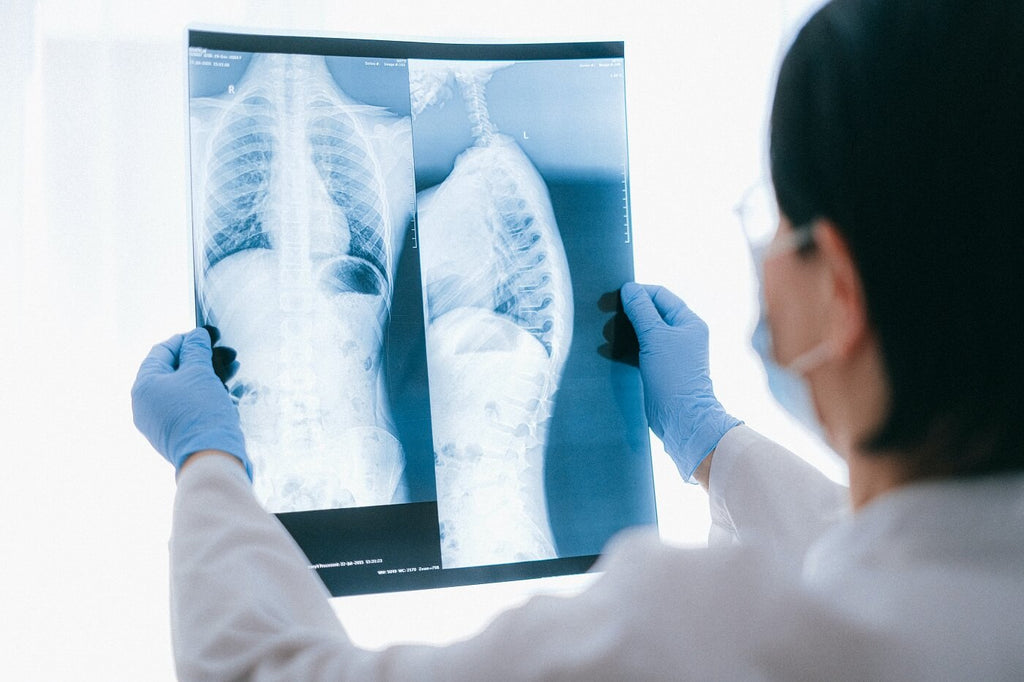 Female doctor holding up an x-ray for a medical test