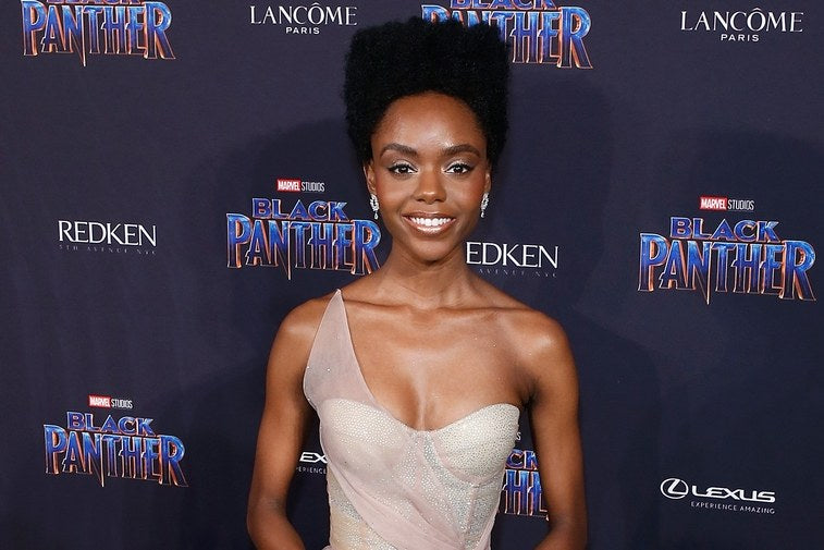 How Riverdale Actress Ashleigh Murray Deals With Her Cystic Acne