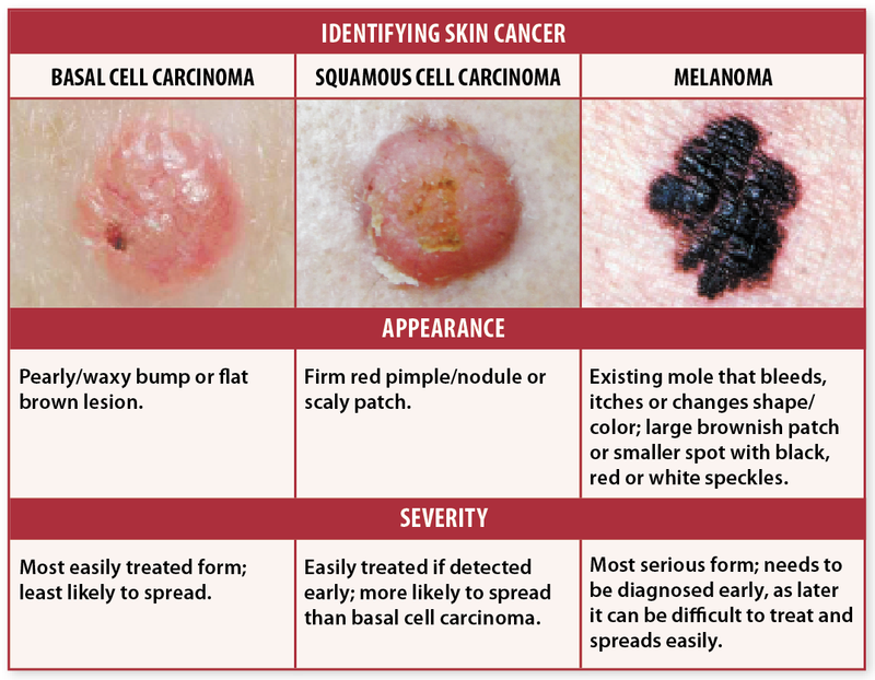 SKIN CANCER, KNOW THE FACTS