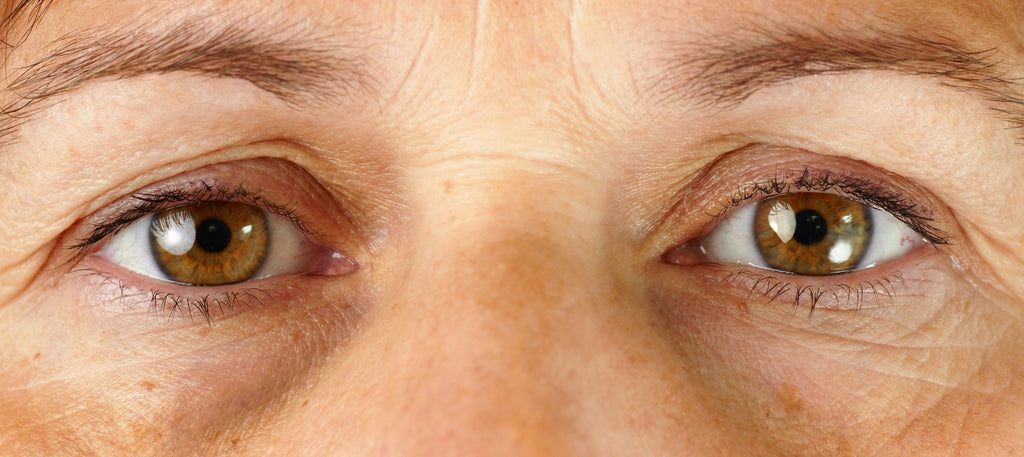 How to treat the 3 most common aging eye problems...