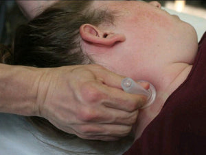 Live Online Evidence Informed Clinical Cupping: Face, Head & Neck