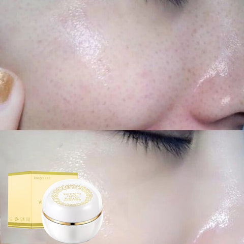 Images Herbal Freckles Killer Cream Face Whitening Speckle Age Spots Melasma Sunburn Acne Spots Cream 30g